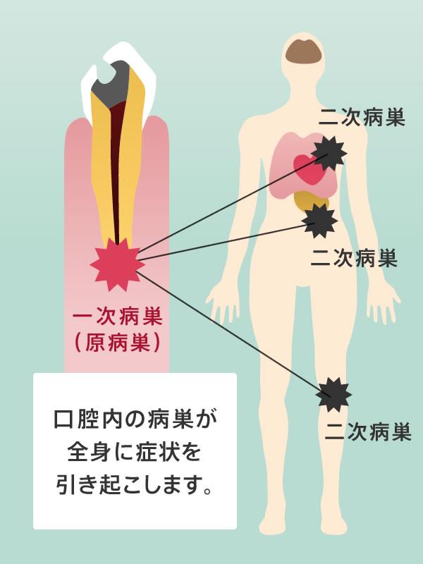 口腔内の病巣が全身に症状を引き起こします。