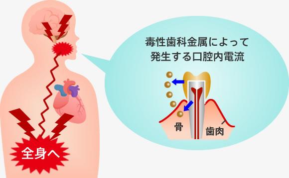 毒性歯科金属によって発生する口腔内電流